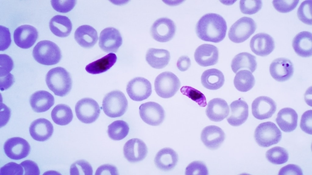 Plasmodium falciparum i förstoring