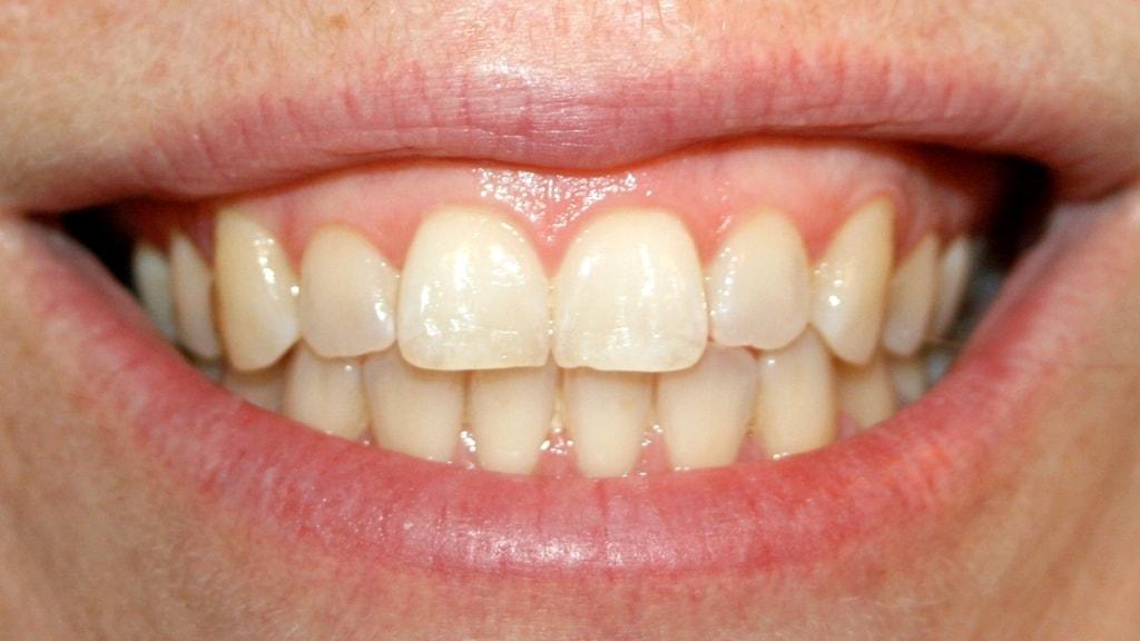 Hur viktiga är tänderna?