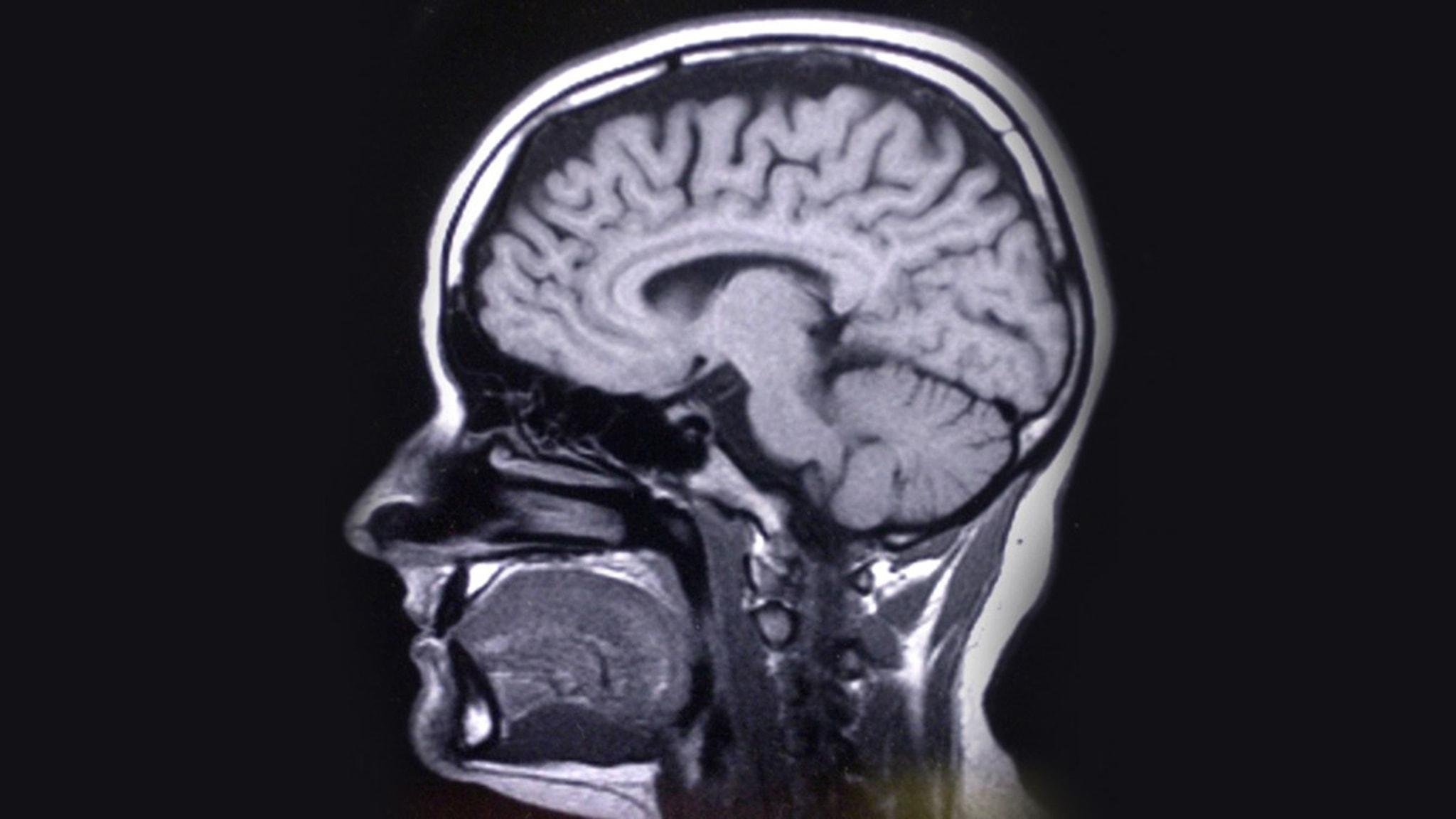 Adhd syns tydligt i hjärnan