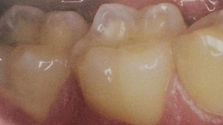Tänder som blivit nästan genomskinliga av för mycket energidrycker.