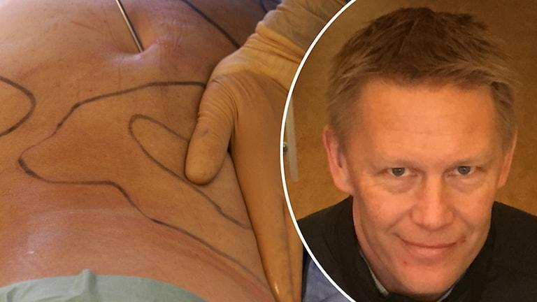 Skönhetsoperationer och universitetslektor Martin Persson.