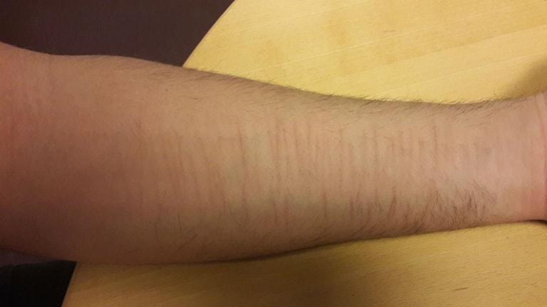 Hamids arm efter självmordsförsöket