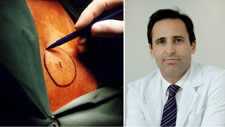 Kirurg som ringar in hudcancer med en penna inför en operation och porträttbild på John Paoli, överläkare på Sahlgrenskas hudklinik.
