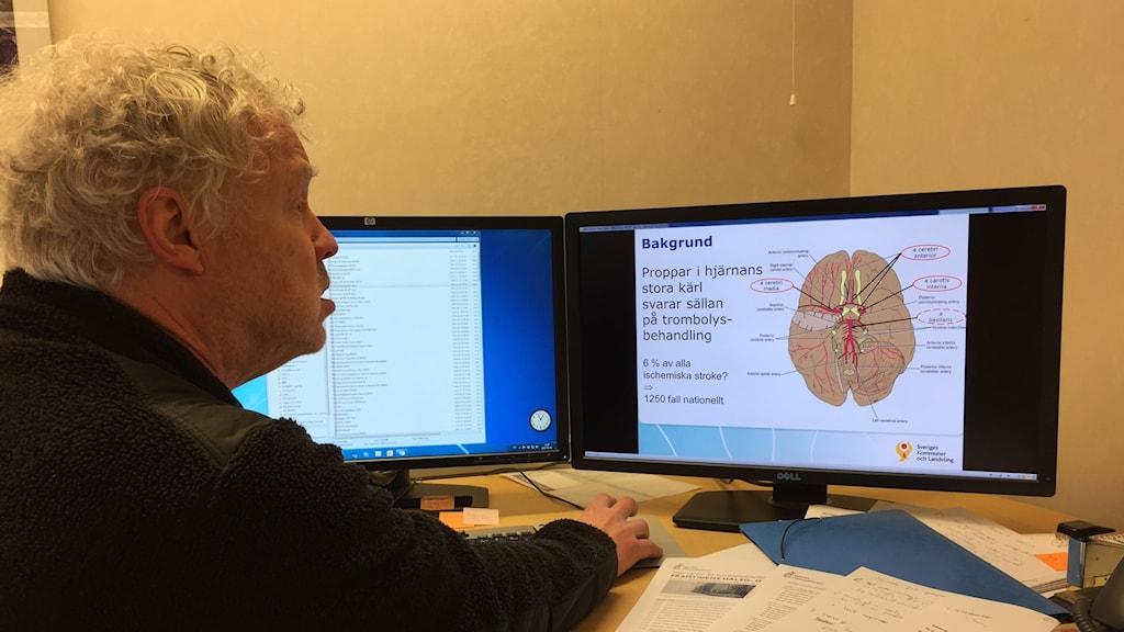 Neurologiprofessorn Lars Rosengren framför bild av hjärnan med dess blodkärl