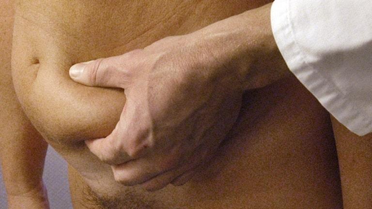 Operation av delade magmuskler förbättrar livet