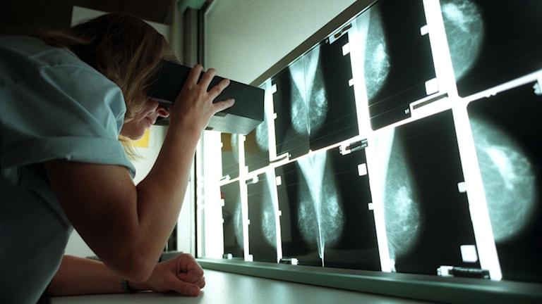 Röntgenplåtar med bilder på friska bröst. Foto: Fredrik Sandberg/ Scanpix