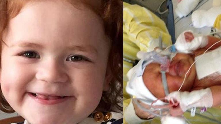 Ett kollage med två bilder på Alma Nilsson, På den vänstra är hon en glad treåring, på den högra nyfödd med en massa slangar på kroppen.