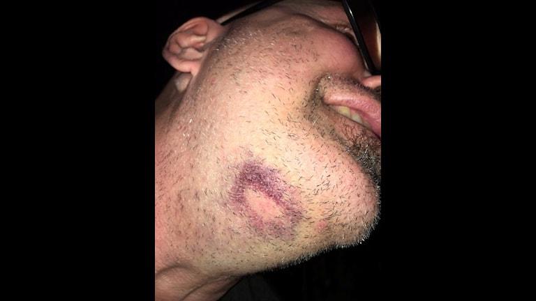 En bild på Bittes hals, med ett stort blåmärke där skorpionen stack honom.