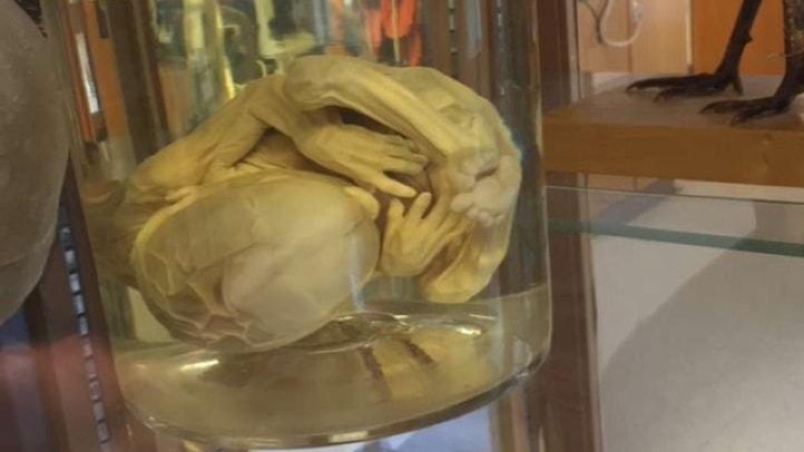 En bild på fostret i sin formalinburk