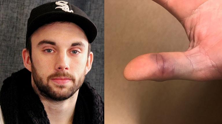 Ett kollage med bilder på Gustaf Hallén och hans skadade tumme.