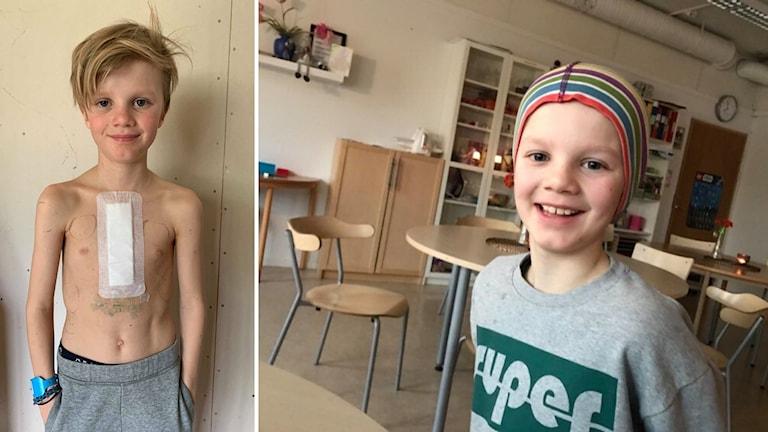 Det är en bildsplit av en nioårig pojke som på ena bilden ler och är glad. På den andra bilden ler han och visar ett stort bandat operationsärr på överkroppen.