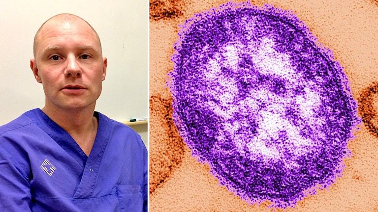 Distriktsläkaren Mattias Rööst till höger, till vänster en närbild på ett mässlingsvirus.