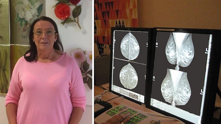 Lena Myrskog till vänster, till höger en skärm med mammografibilder