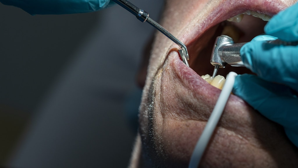 En tandläkare arbetar med en patients mun