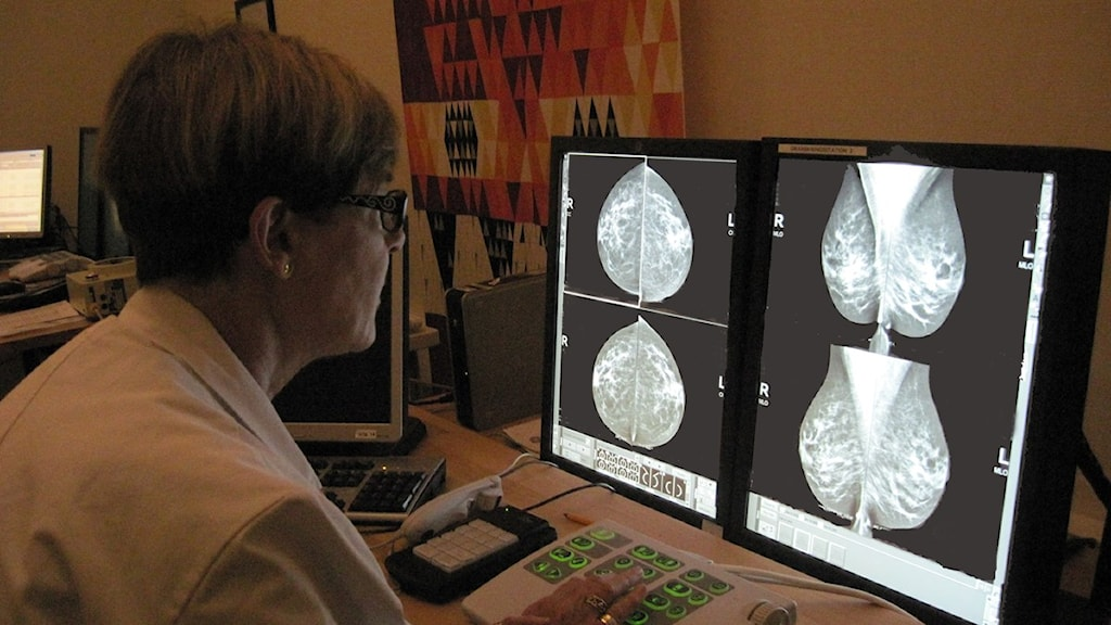 Birgitta Andersson granskar mammografibild. Foto: Lena Gustavsson/Sveriges Radio.
