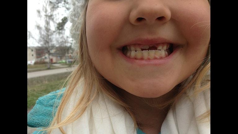 Västerbottning som visar sina tänder sexåring med glugg