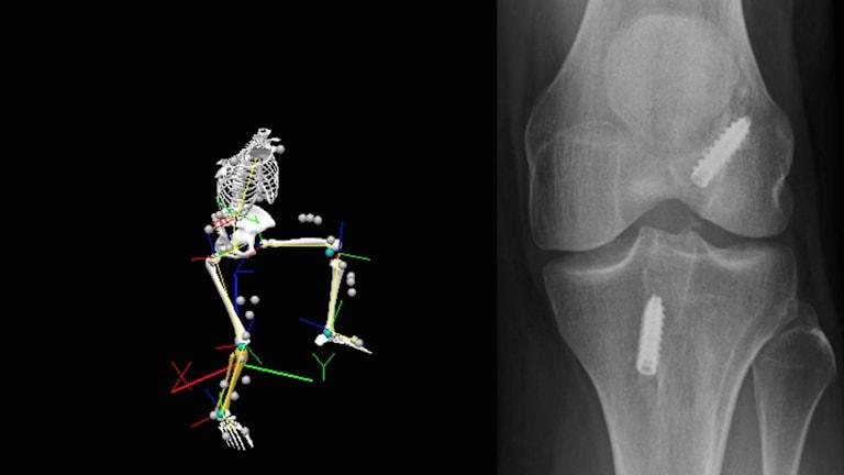 En röntgenbild av ett knä med två skruvar i. Foto: Prof. Charlotte Häger, Umeå universitet.