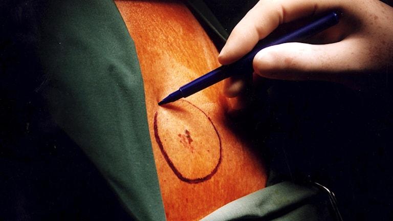 En hand ritar med en penna runt en hudförändring inför en operation.  Foto: Björn Larsson/Scanpix