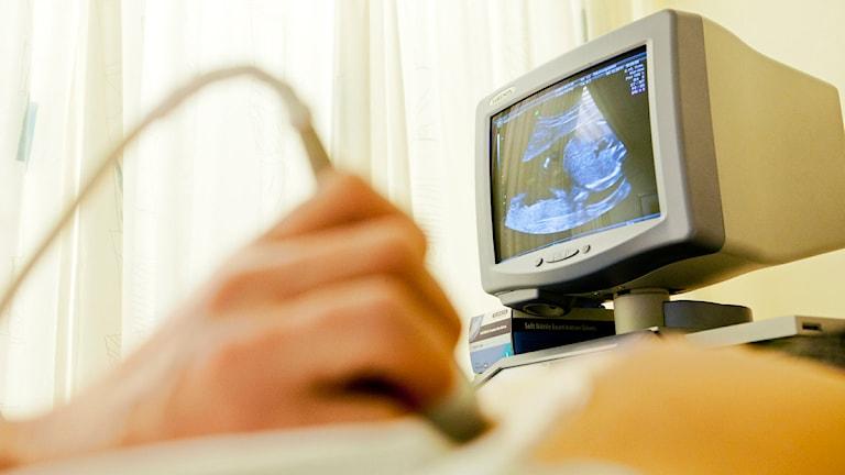 Ultraljud visar ett foster på en datorskärm. Foto: Tore Meek/Scanpix