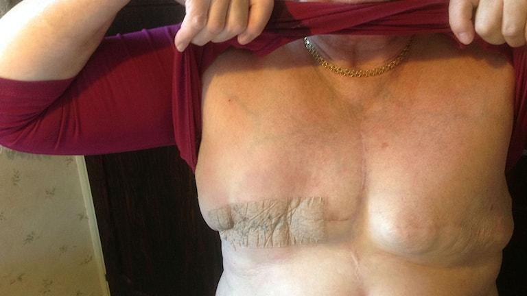 I Västernorrland fick 203 kvinnor bröstcancer 2013. Foto Ulla Öhman