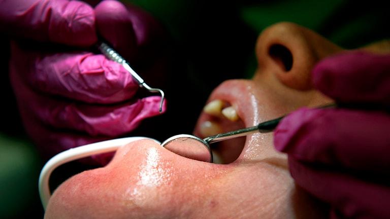 En patient behndlas hos en tandläkare. Foto: Janerik Henriksson/TT