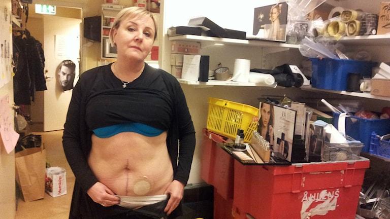 Lena Augustsson är opererad för ändtarmscancer och har en stomi på magen.
