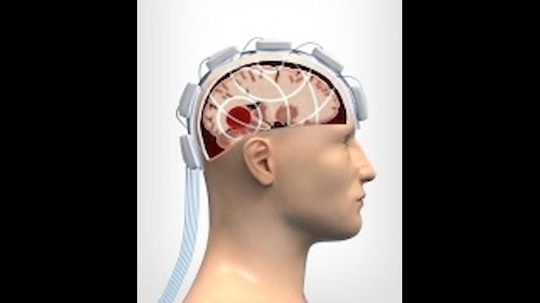 """Illustration hur """"Strokefinder"""" skickar signaler för att upptäcka en hjärnblödning. Foto: Chalmers tekniska högskola/TT"""