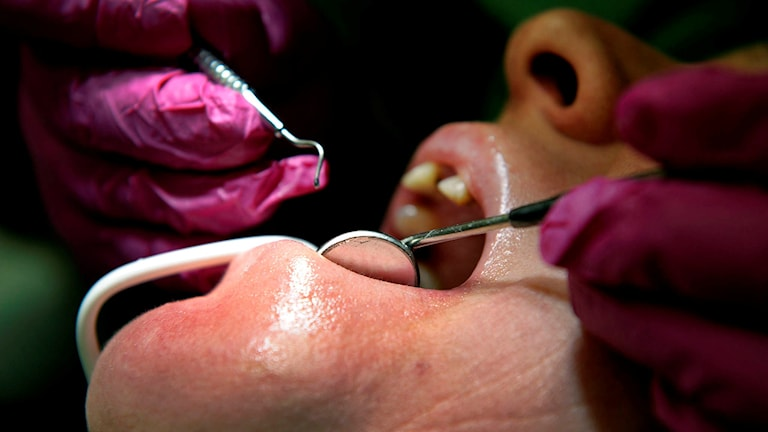 En patient behandlas hos en tandläkare. Foto: Janerik Henriksson/TT.