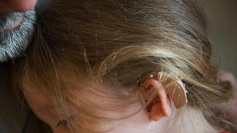 Uttalsträning kan hjälpa barn med hörselnedsättning. Foto: AP Photo/David Goldman / TT.