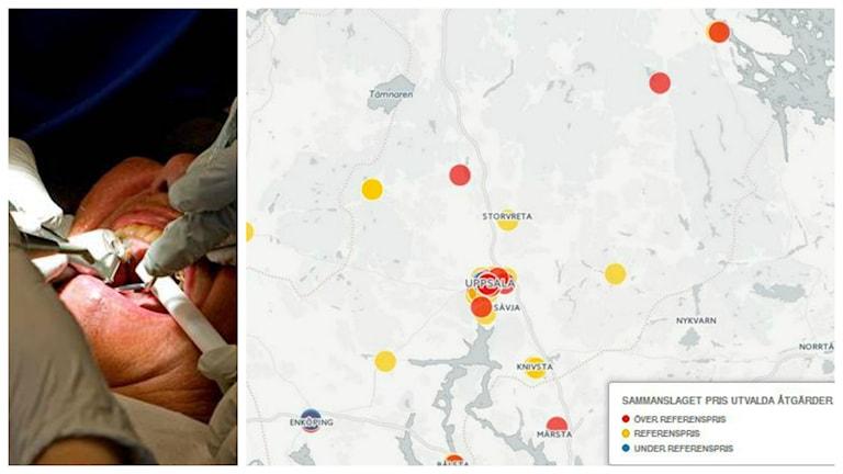 Fotomontage. Fr v: Tandundersökning och karta över kostnaderna i Uppsala län.