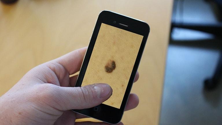 Med hjälp av en app till smartphones ska hudcancer upptäckas snabbare. Bilden är ett montage. Foto: Patrik Enlund