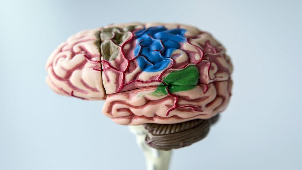 Avbildning av hjärna