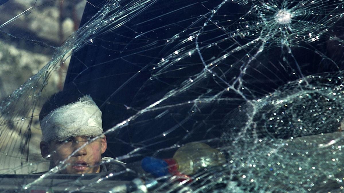 En skadad pojke sitter i en ambulans i Aleppo i väntan på at bli evakuerad. Foto: AFP/TT