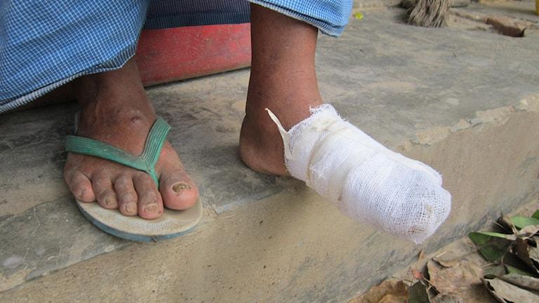 Fot som inte vill läka, bonde i Kanpur, Indien