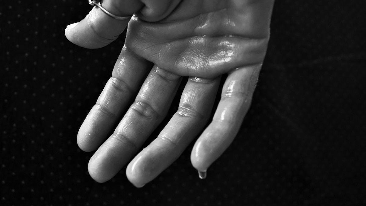 Hand som svetteas