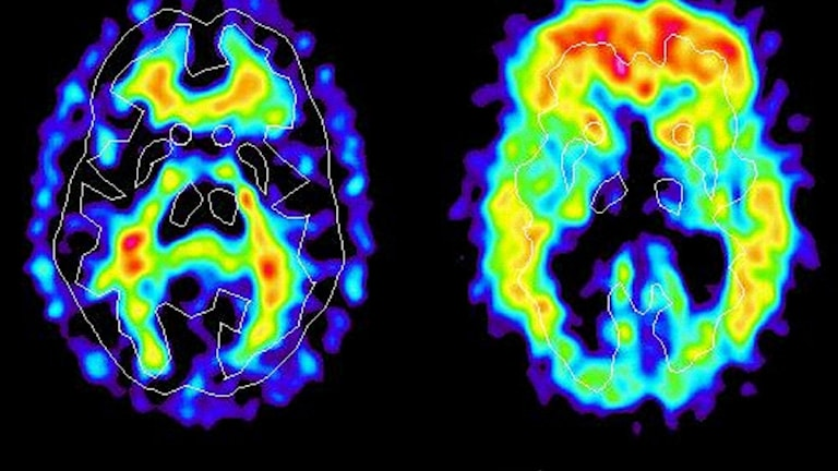 Hjärna fotograferad med PET-kamera. Foto: Uppsala Universitet/ TT