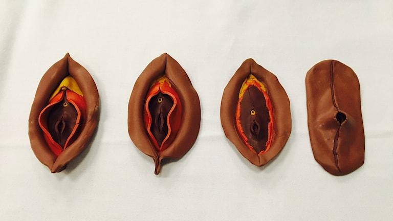 Modeller av vulvor. Till vänster, oskadad. De andra visar olika nivåer av könsstympning, klitoris och blygdläppar har skurits bort.