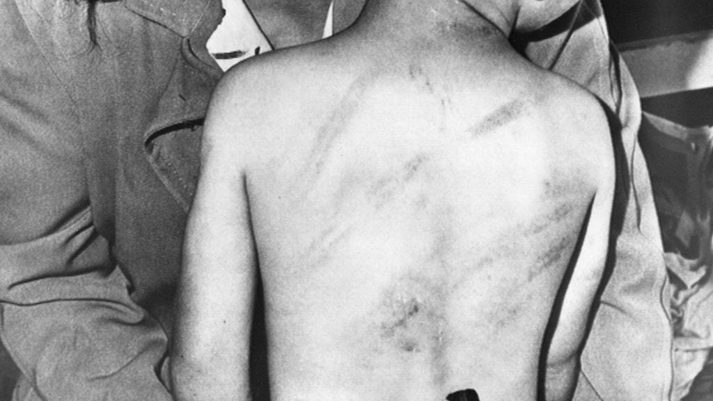 Misshandlad pojke./SVT Bild