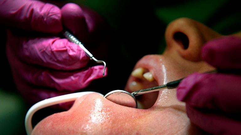 Tandläkare. foto Janerik Henriksson, Scanpix.