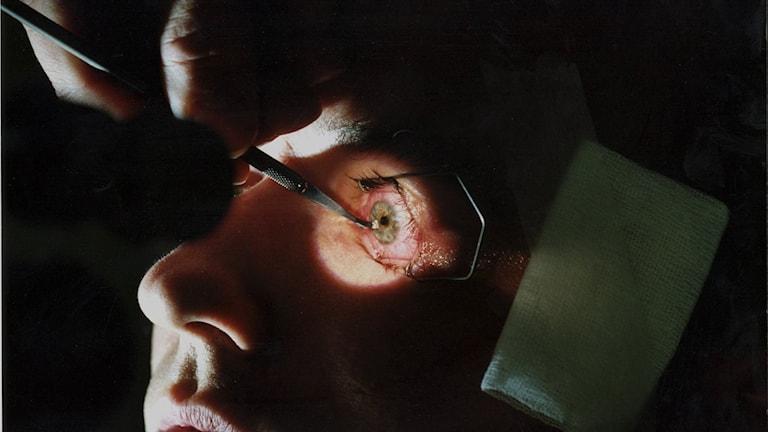 Ett öga opereras med laser.