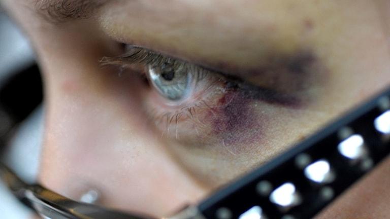 En kvinna med ett blåöga