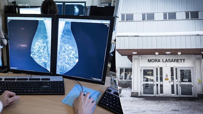 En doktor undersöker en datorskärm med bilder från mammografi. Entrén till Mora lasarett.