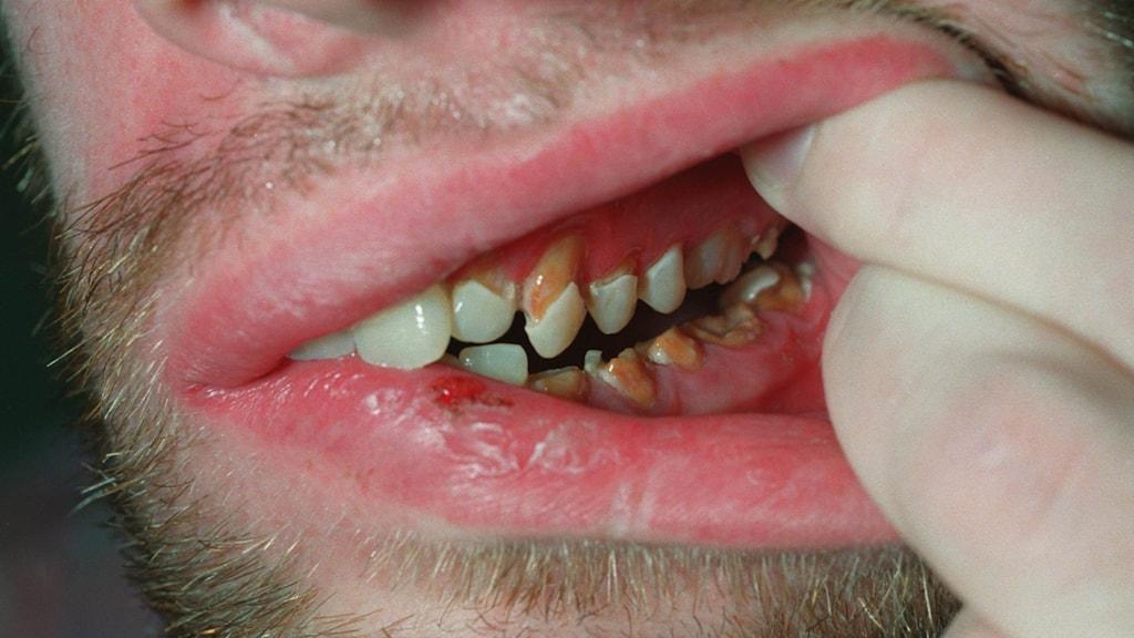 En man visar sina tänder