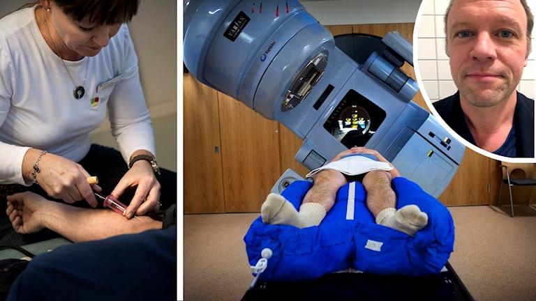 Bildkollage med dels en sköterska som tar blodprov i en arm, dels en person som på rygg åker in i en strålningsmaskin, dels en ansiktsbild på överläkare Hampus Nugin.