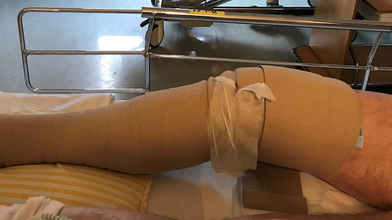 Ett nyopererat knä