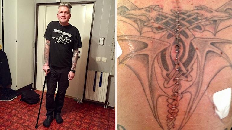 Man i 50-års åldern med käpp. Foto av hans opererade ryggrad där tumören satt.