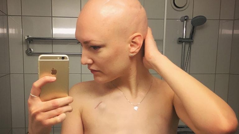 Cancerdrabbade Emma Skoglund.