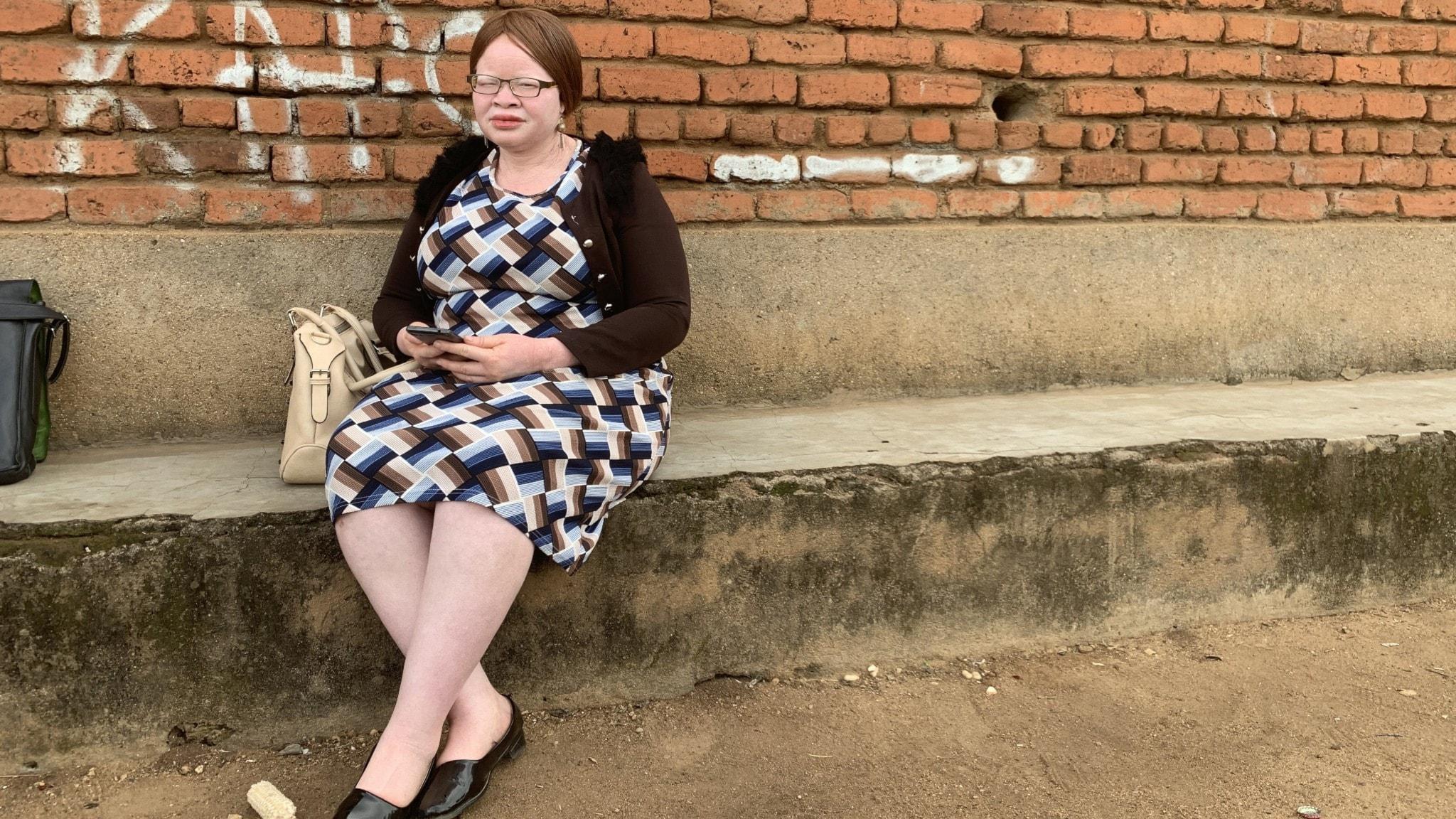 Virginia Chemotswe från Association for Persons with Albinism in Malawi, APAM, misstänker att de jagas på grund av vidskeplighet.