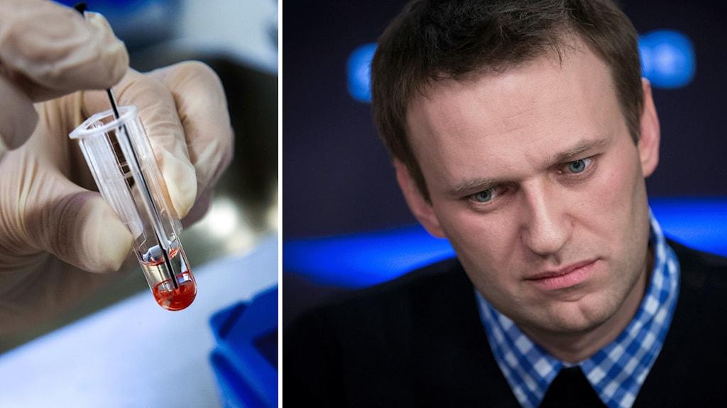 Delad bild. Ett blodprov och ryske oppositionsledaren Aleksej Navalnyj