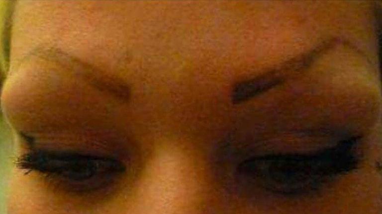 Bild på Josefins ögonbryn efter den misslyckade tatueringen.